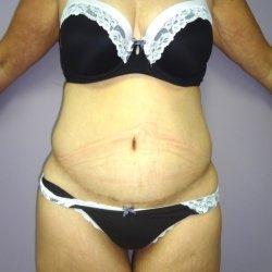 abdominoplasty-after